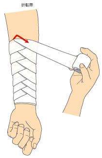 http://nursereport.net/illust/bandage_04.jpg