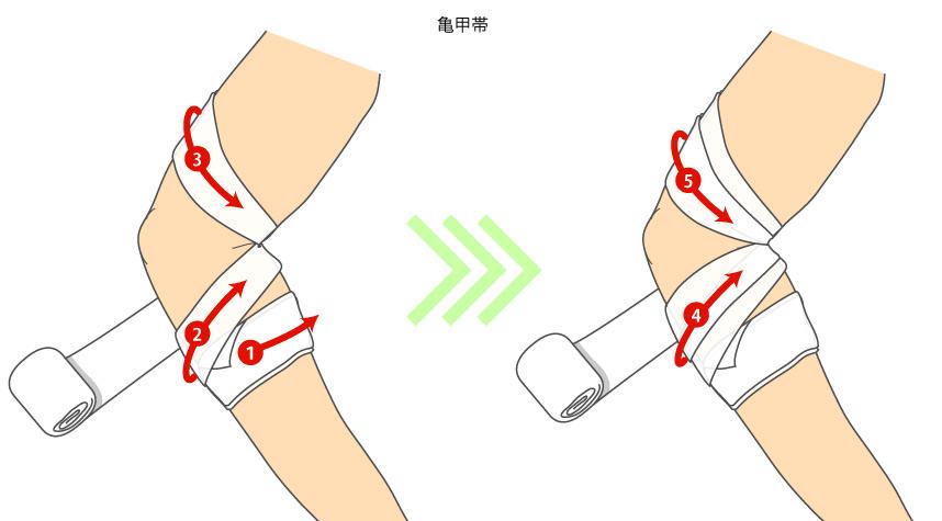 http://nursereport.net/illust/bandage_07.jpg