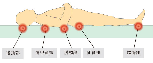 http://nursereport.net/illust/bedsore_position1.jpg