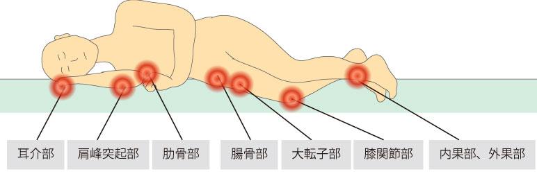http://nursereport.net/illust/bedsore_position2.jpg