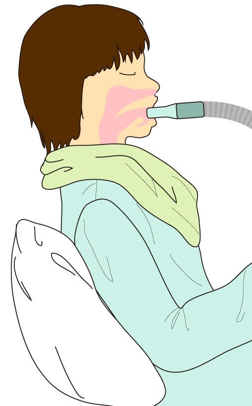 超音波ネブライザー,吸入,喀痰