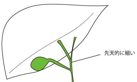 http://nursereport.net/illust/shouni_shoukaki11.jpg